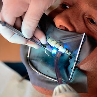 The technology used for prepless veneers in Family Dentistry in Brentwood TN