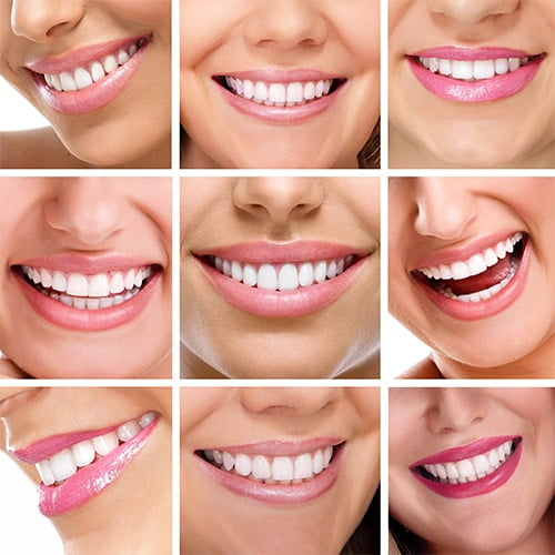 Shot of Women smiling thanks to Brentwood Cosmetic Dentist