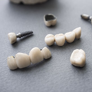 The various ways to use dental crowns, including for dental implants and bridges