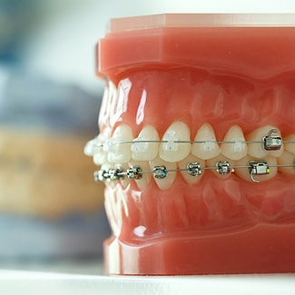 Model of teeth wearing metal and clear braces