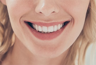 Close-up smile to show users how to submit for the virtual consultation