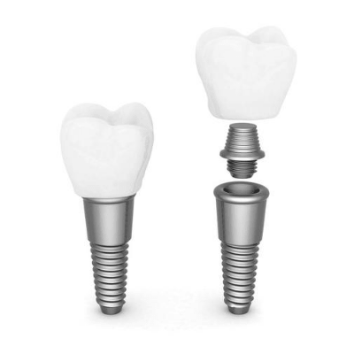 Two dental implants showing the post, abutment, and crown
